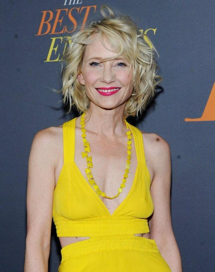 Anne Heche hot lips pics