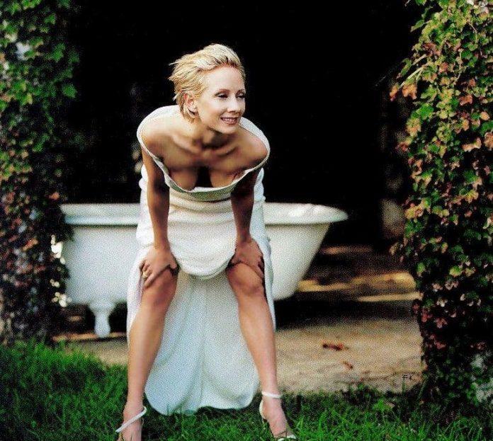 Anne Heche sexy legs pics